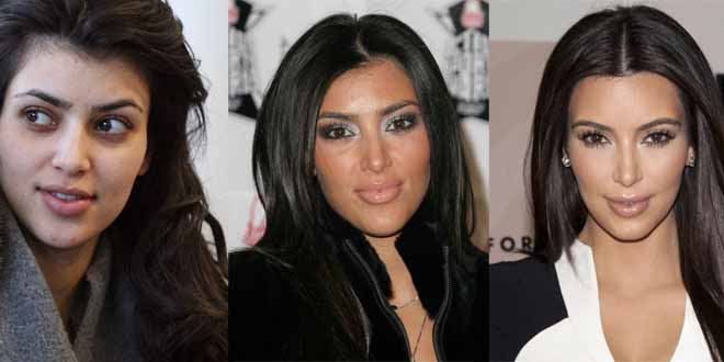 kim-kardashian-evolution-chirurgy