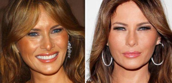 Dossier TOP SECRET : la chirurgie esthétique de Mélania Trump