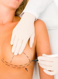 Est-ce qu'une incision péri-aréolaire affecte-t-elle l'allaitement ?